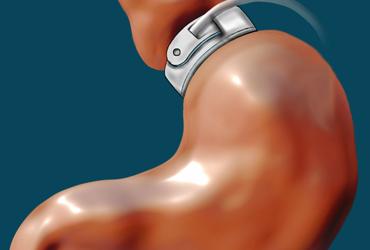 Qu'est-ce que l'anneau gastrique ?